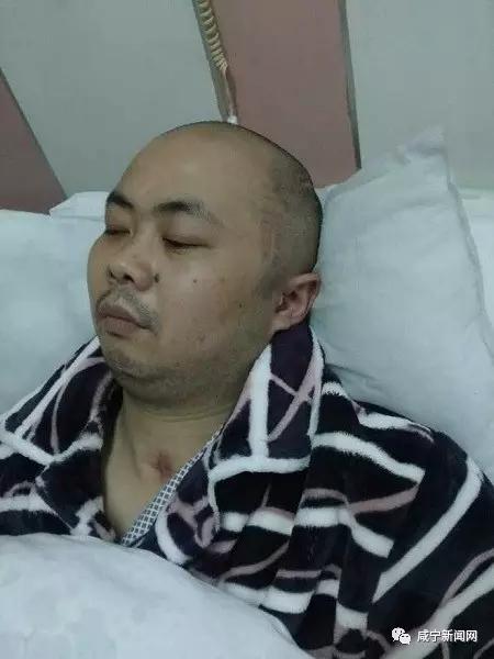 咸宁男子开颅救命钱在香港被盗刷15.1万,更加诡异的是…